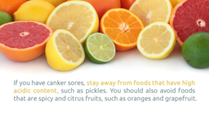 Can Acidic Foods Cause Canker Sores